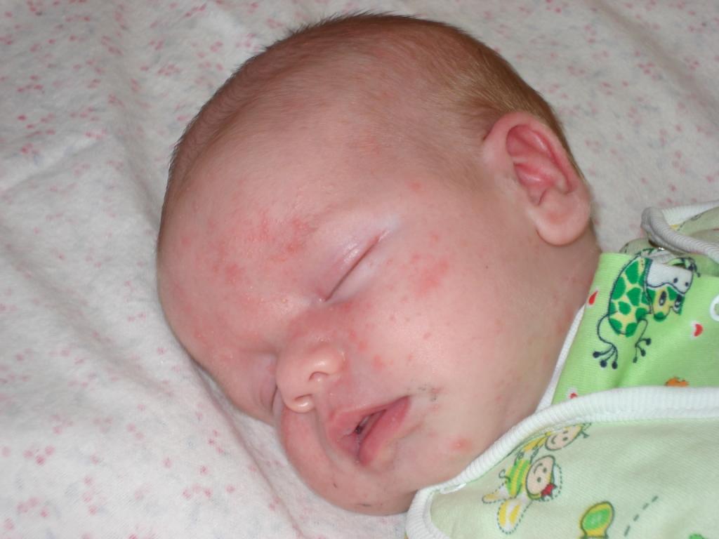 красные пятна на лице у грудничка фото с описанием